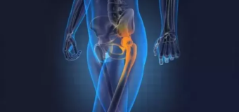 Hip Replacement – Hip a major weight bearing point in the human body
