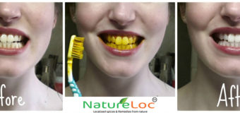 Turmeric: Find Out How I Whitened My Teeth Without Going To The Doctor