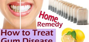 5 Natural Ayurvedic Home Remedies For Bleeding Gums